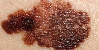 deri kanseri nedir, deri kanseri belirtileri nelerdir, deri kanserinden korunma