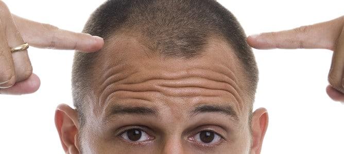 saç ekim doktorları, en iyi saç ekim doktorları, saçları gürleştirme yolları