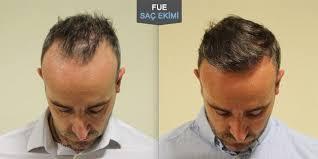 saç ekim doktoru, saç ekimi yapan doktor, saç ekim doktoru deneyimi
