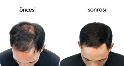 saç ekimi, saç ekim doktoru, alanında uzman saç ekim doktoru