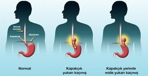 refleksoloji tedavisi, refleksoloji ile gastrit tedavisi, refleksoloji ile gastrit tedavisi