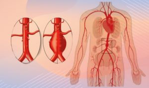 abdominal aort anevrizmaları, abdominal aort anevrizmaları ne demek, abdominal aort anevrizmaları neden olur