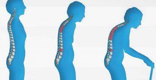 osteoporoz nedir, osteoporoz risk faktörü, osteoporoz tedavisi